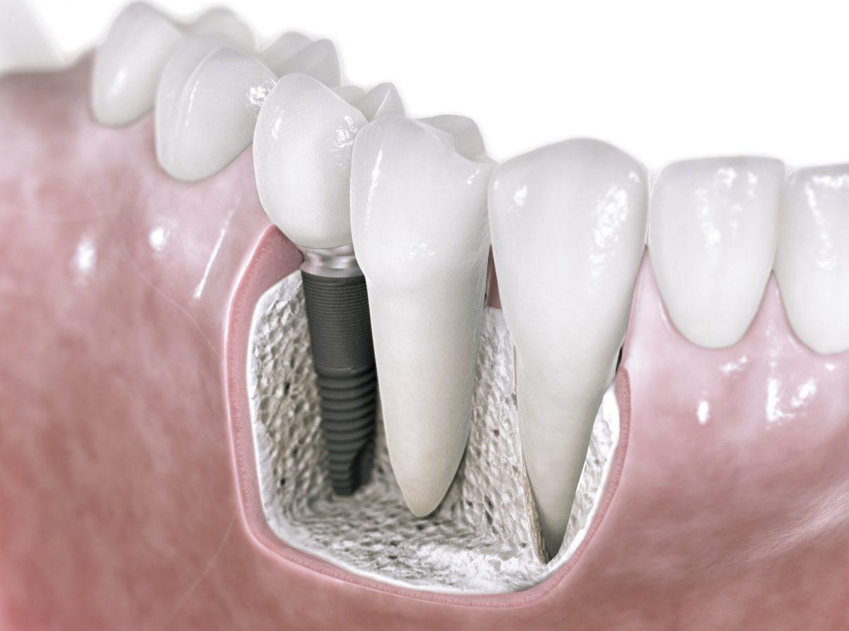 Dental Implant maintenance