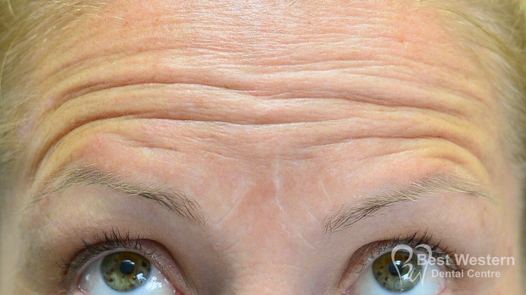 Before-FacialInjectables-7