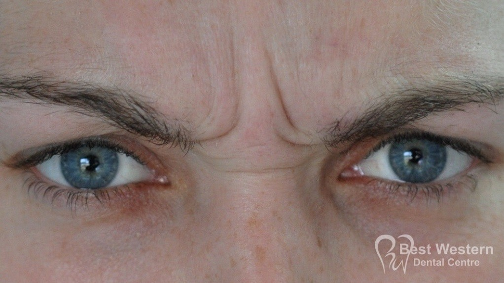 Before-FacialInjectables-8