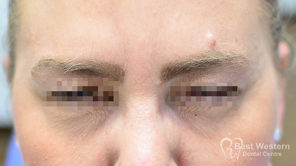 After-FacialInjectables-9