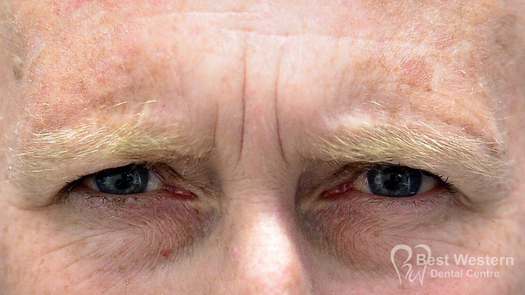 Before-FacialInjectables-10