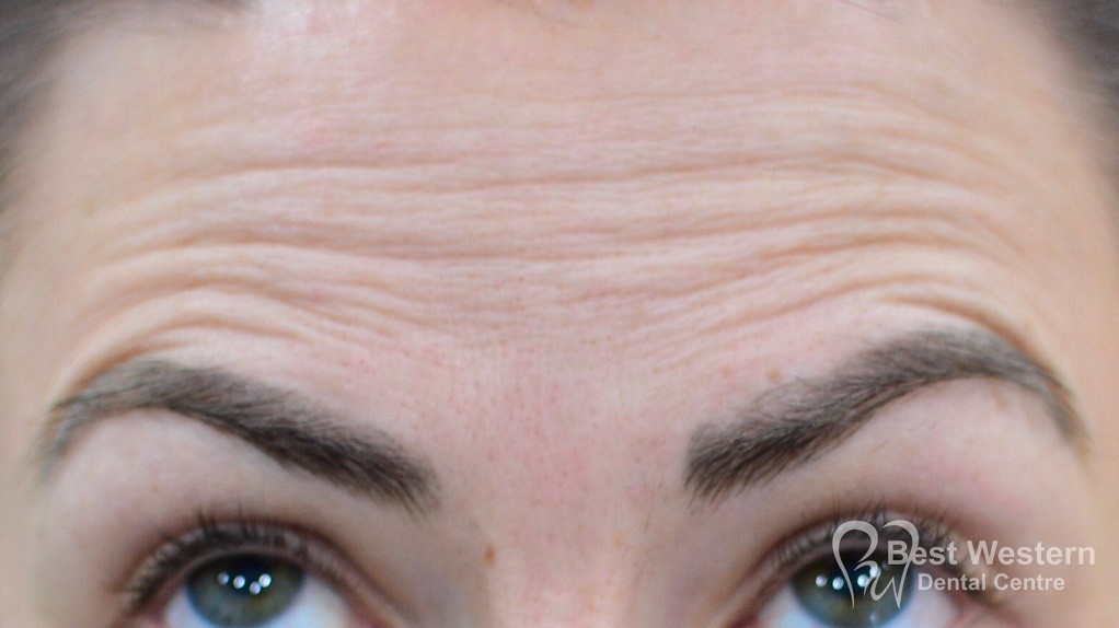 Before-FacialInjectables-11