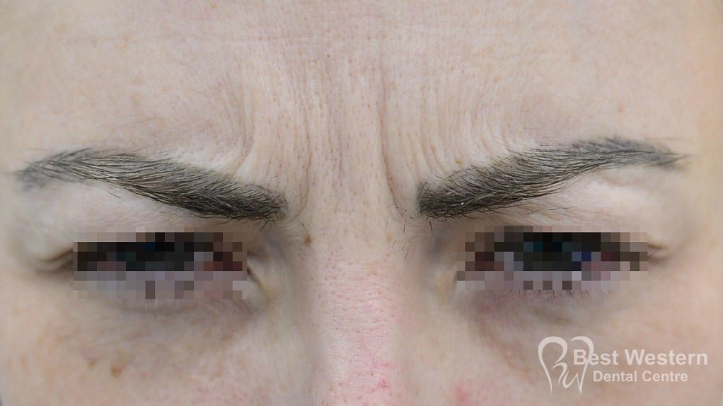 Before-FacialInjectables-12