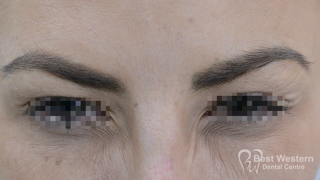 After-FacialInjectables-12