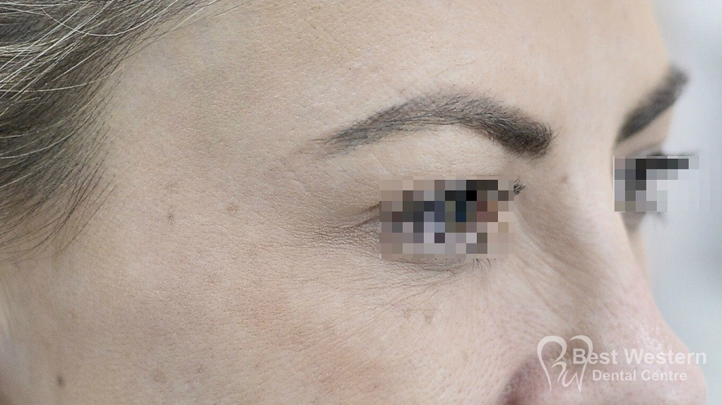 After-FacialInjectables-13