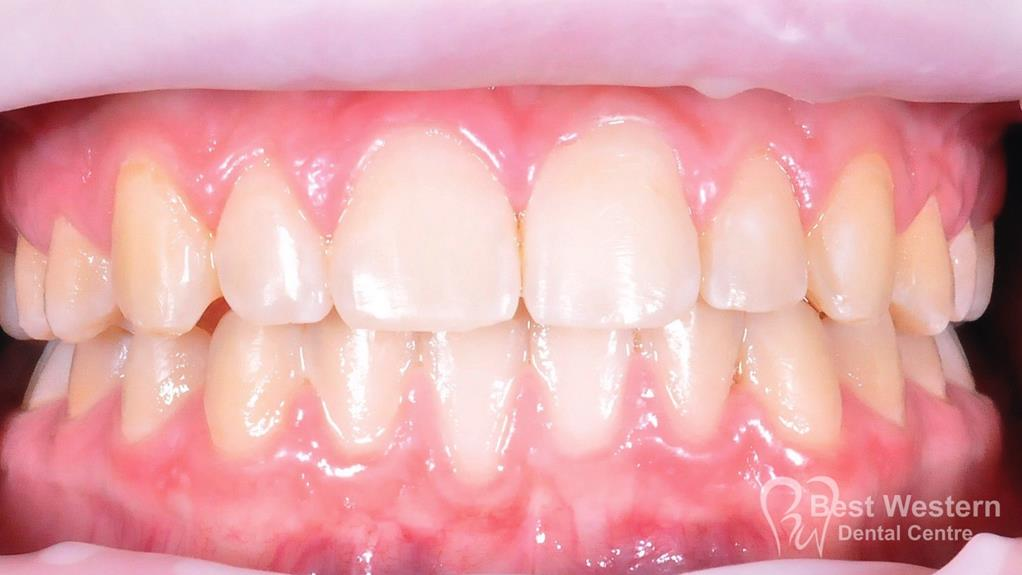 After- Orthodontics-12