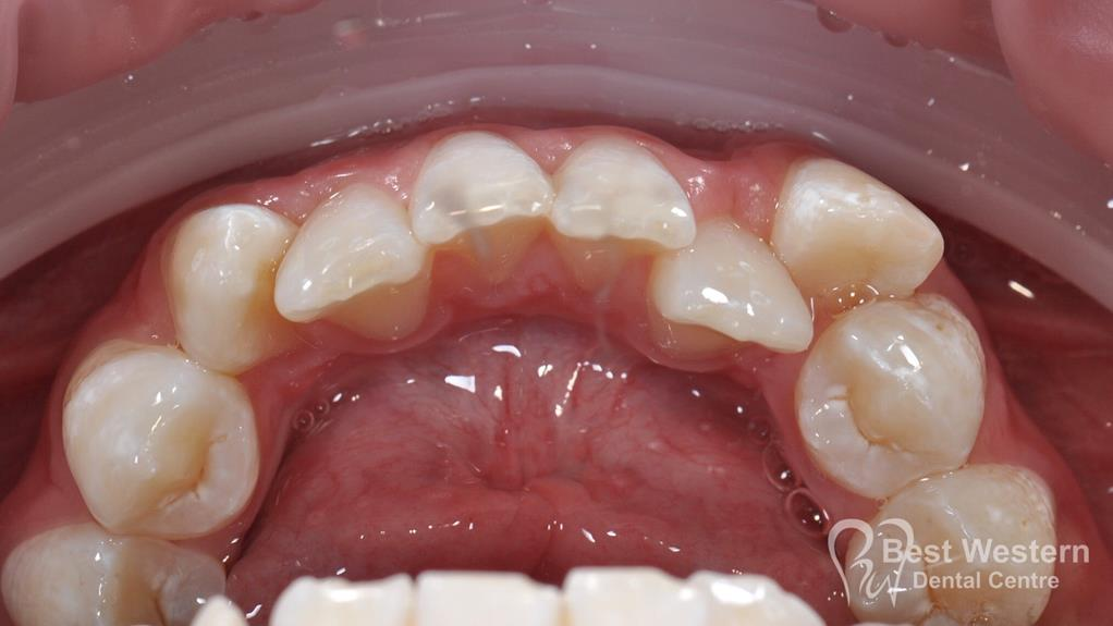 Before- Orthodontics-27