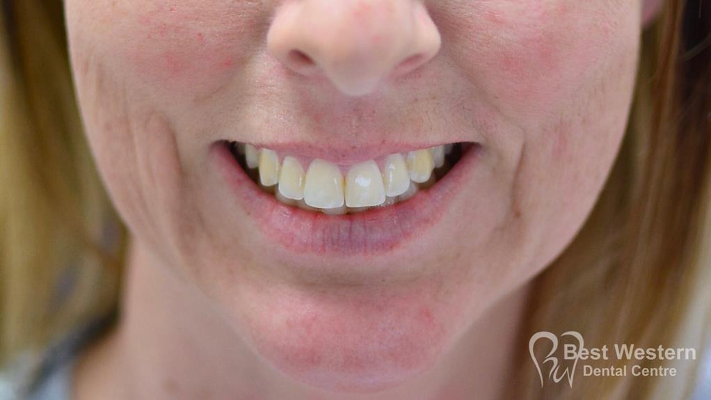 After-Gummy smile 1