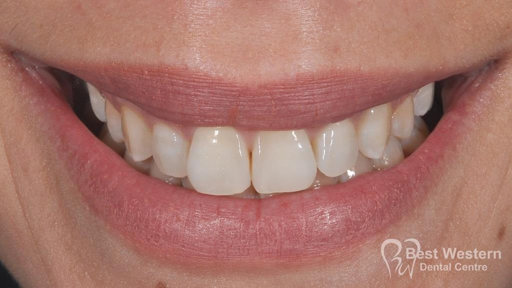 After-Gummy smile 2
