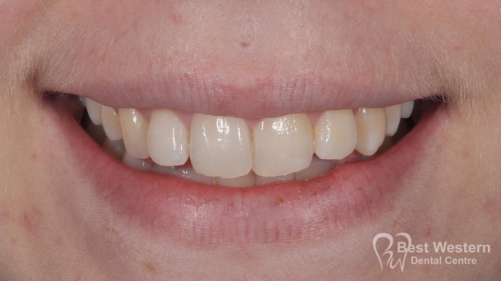 After-Gummy smile 3