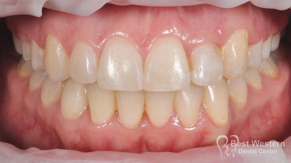 After- Orthodontics-34