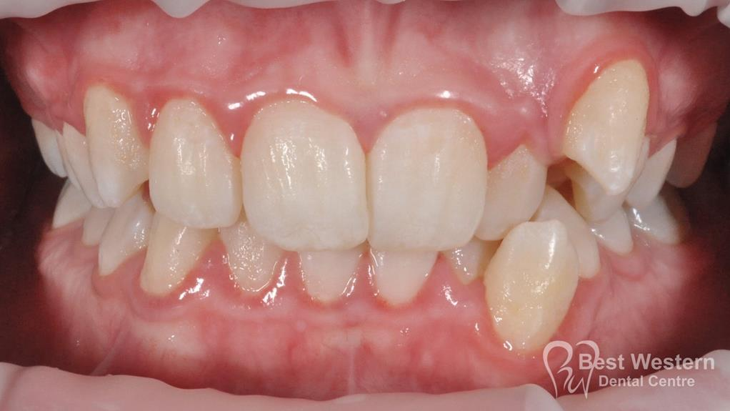 Before- Orthodontics-37