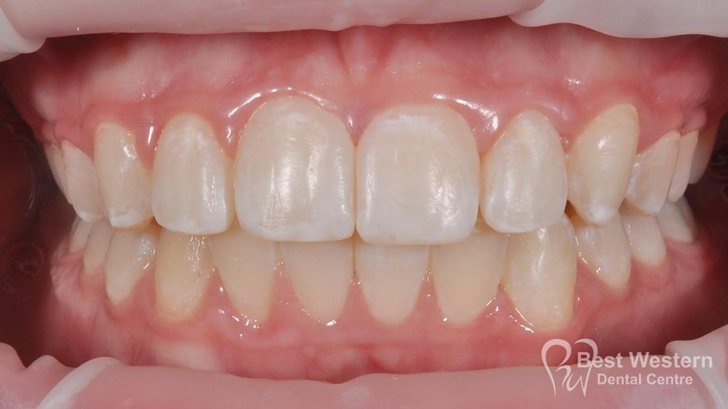 After- Orthodontics-37