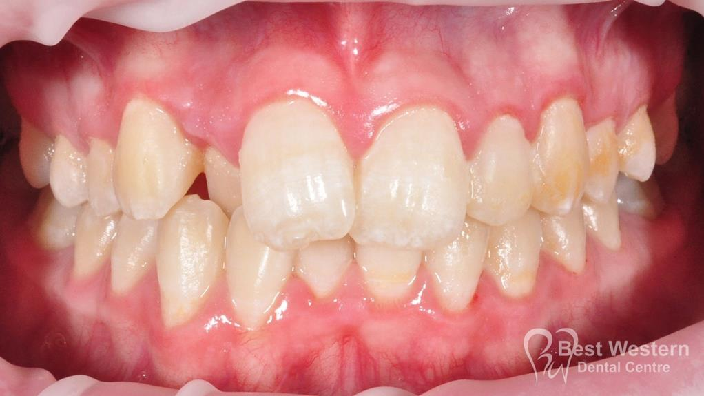 Before- Orthodontics-39