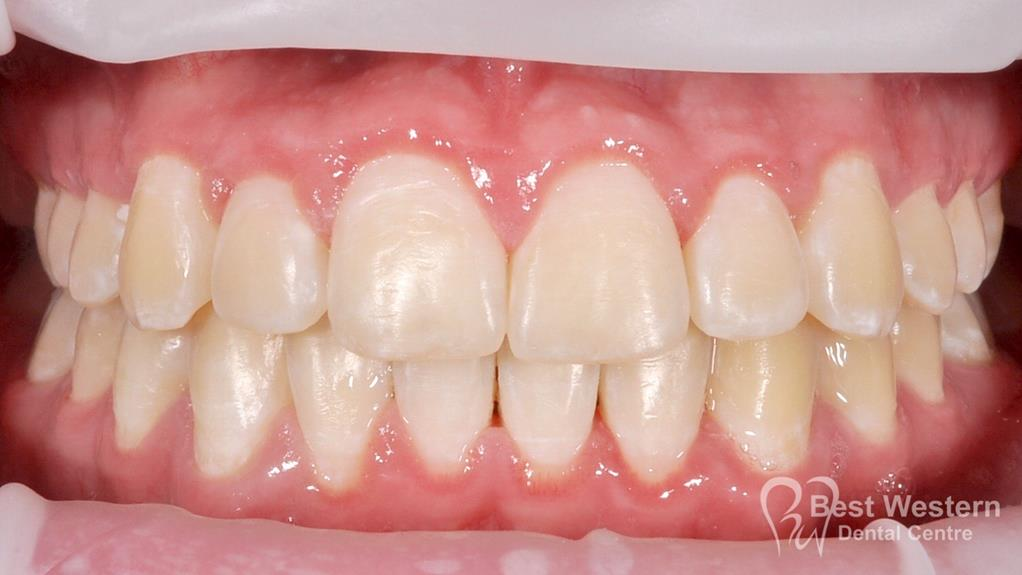 After- Orthodontics-39