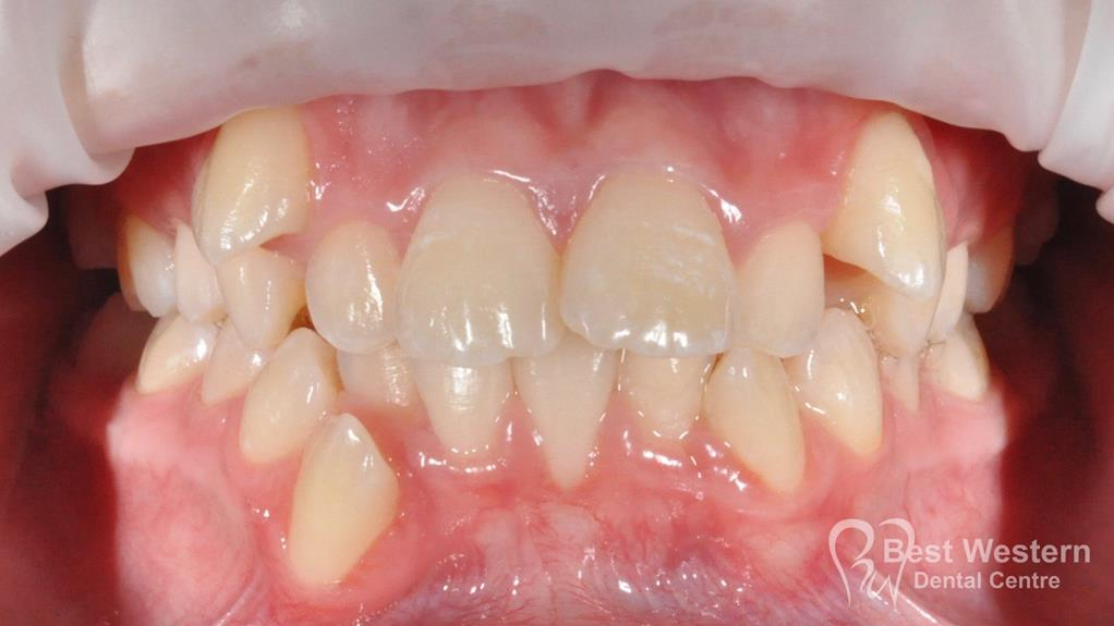 Before- Orthodontics-3