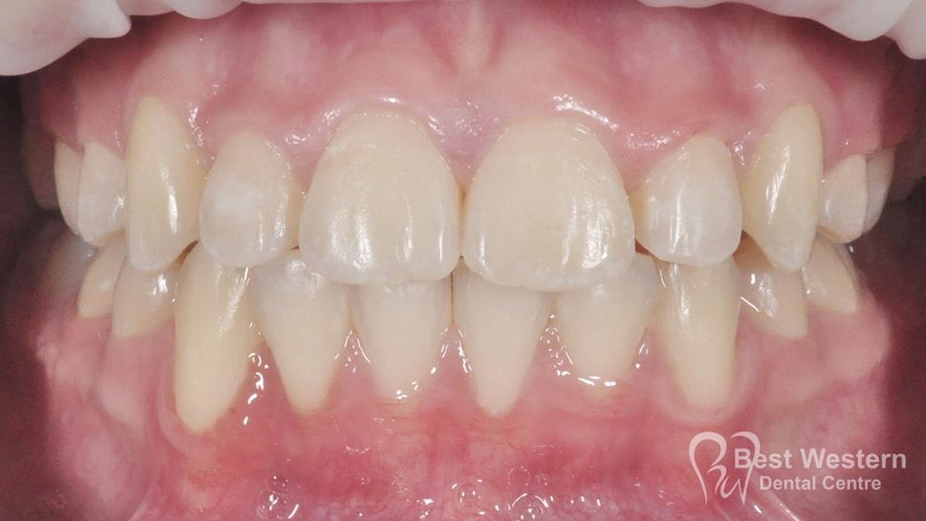 After-Orthodontic -3