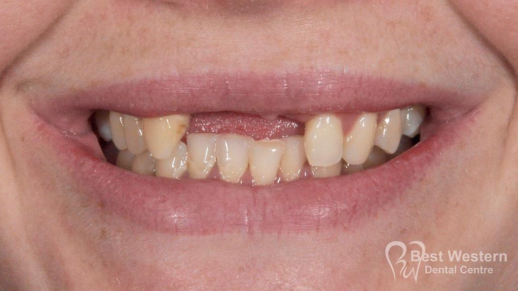 Before-Dental Implants-8