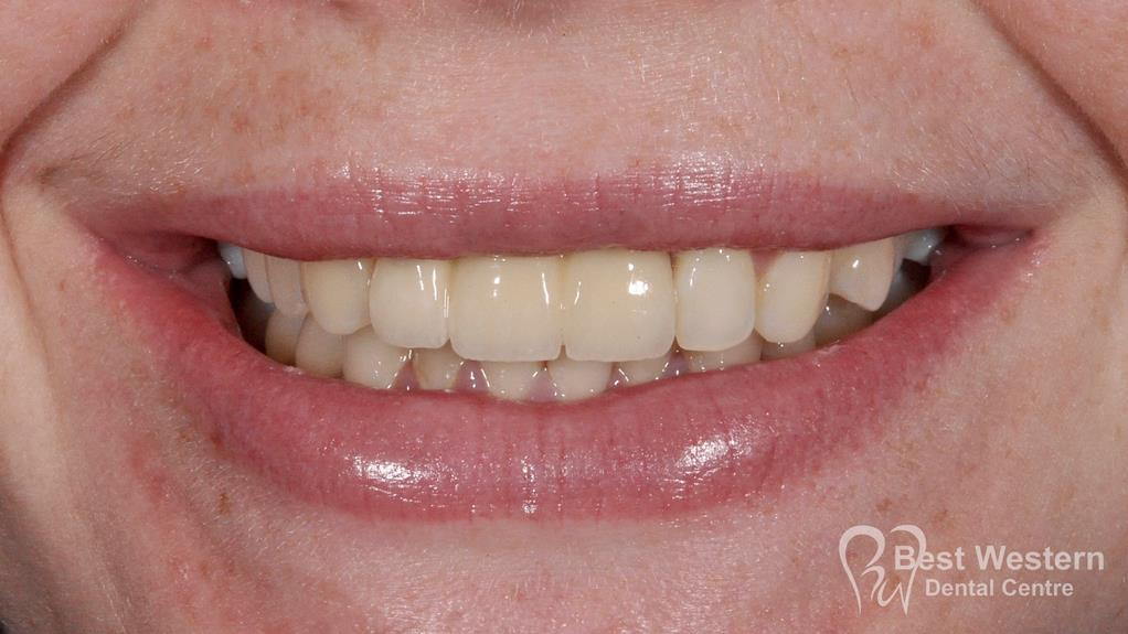 After-Dental Implants-8
