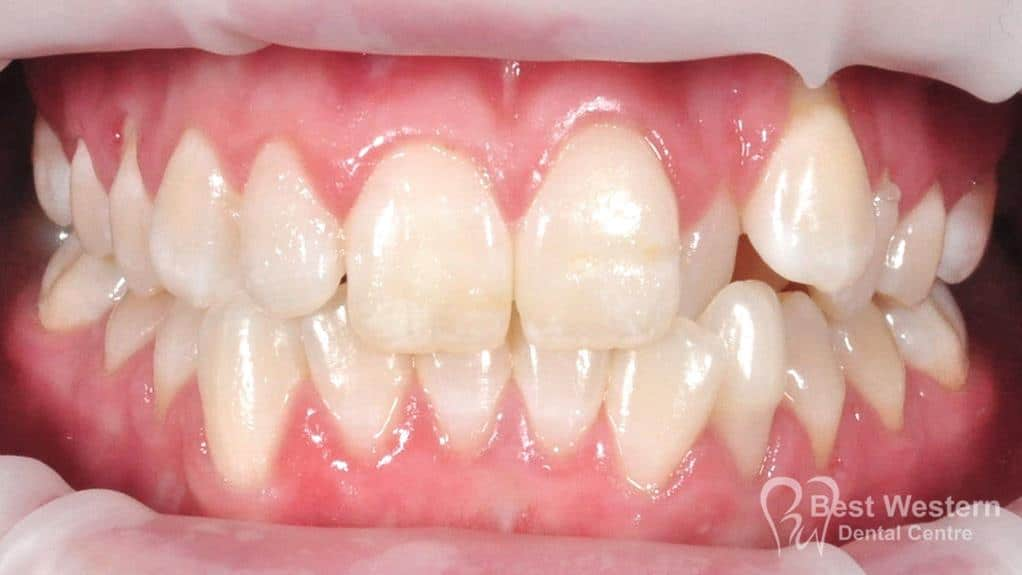 Before- Orthodontics-40