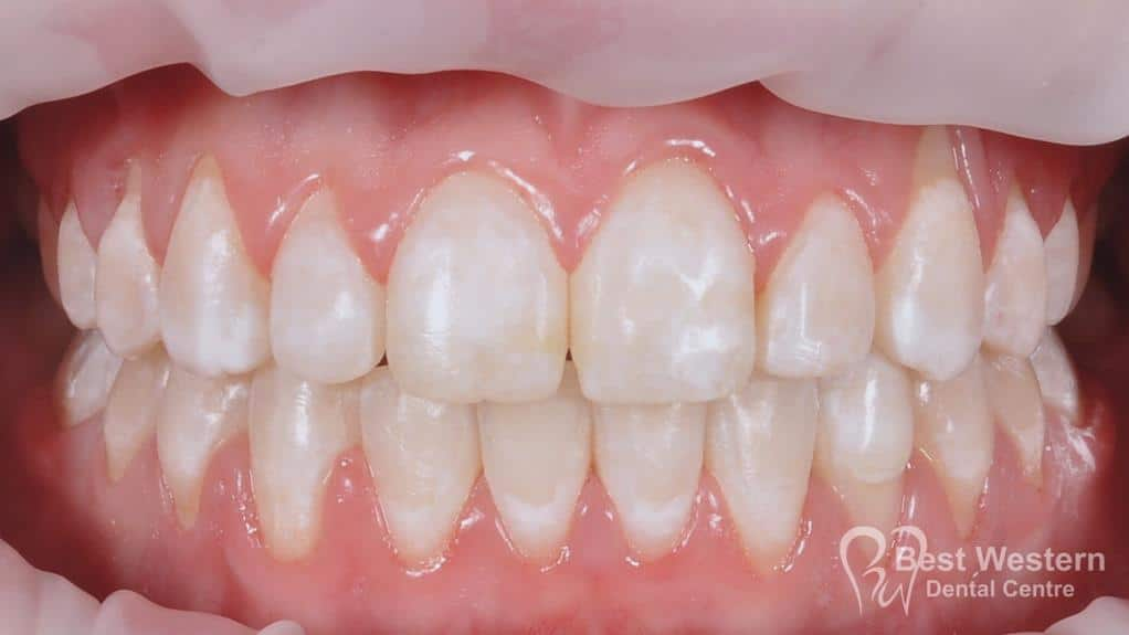 After- Orthodontics-40