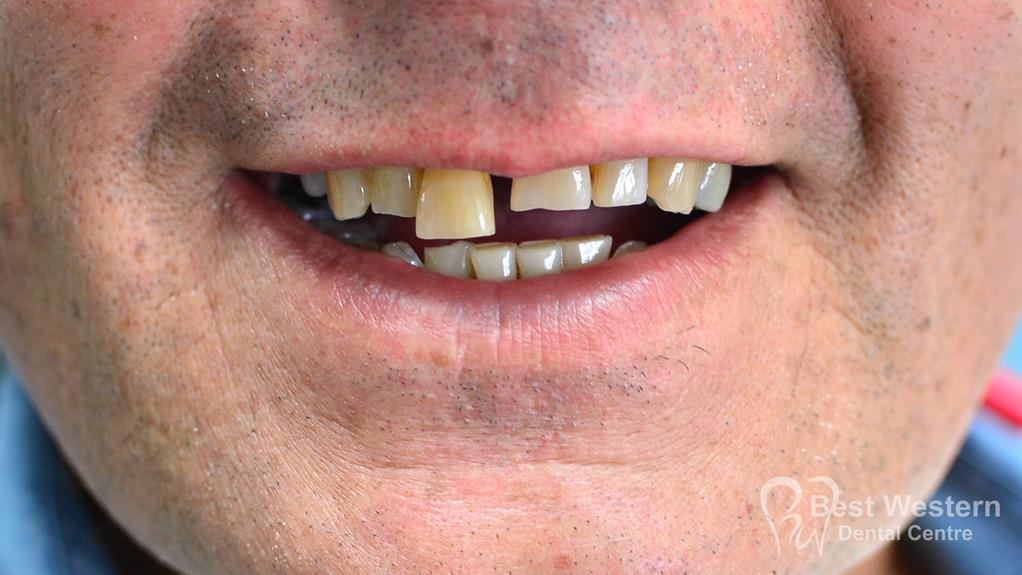 Before-Single dental Implant-10
