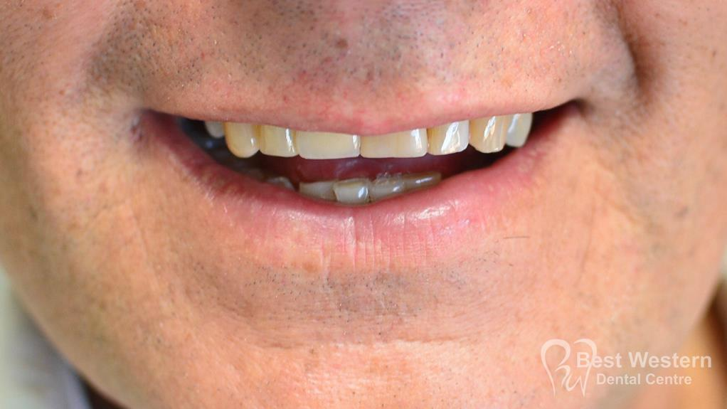 After-Single dental Implant-10