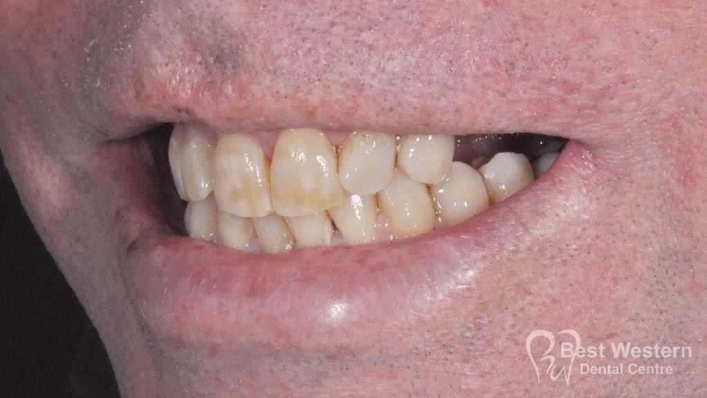 Before-Dental Implant -12