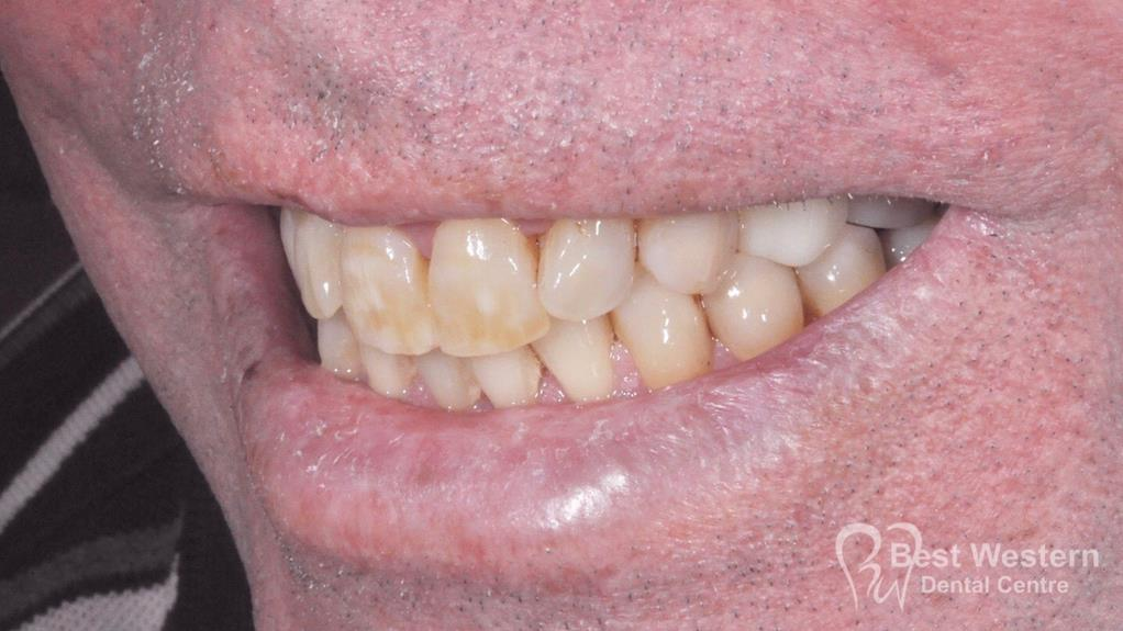 After-Dental Implant -12
