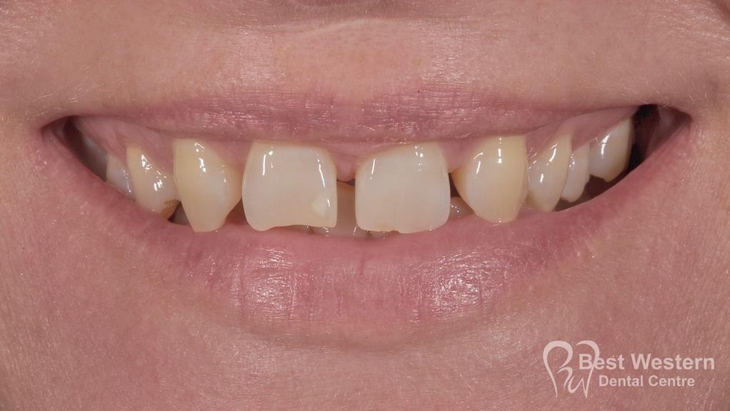 Before- Orthodontics-41
