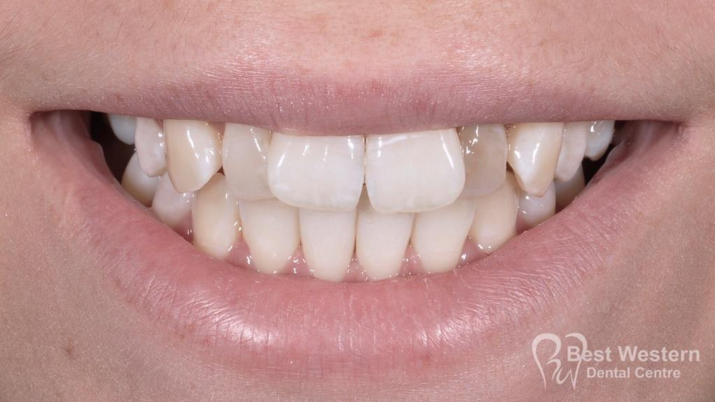 Before- Orthodontics-43