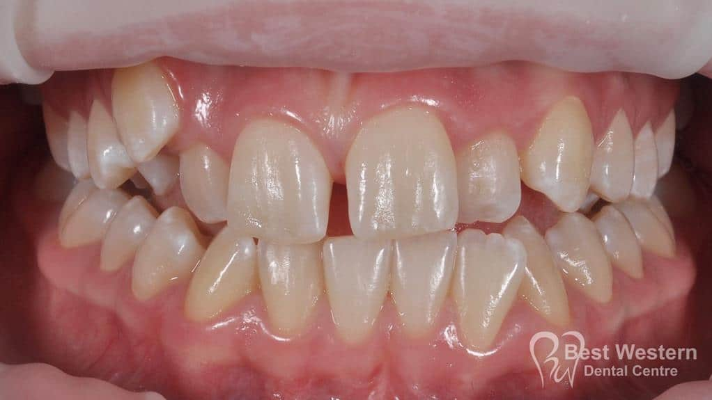 Before- Orthodontics-44