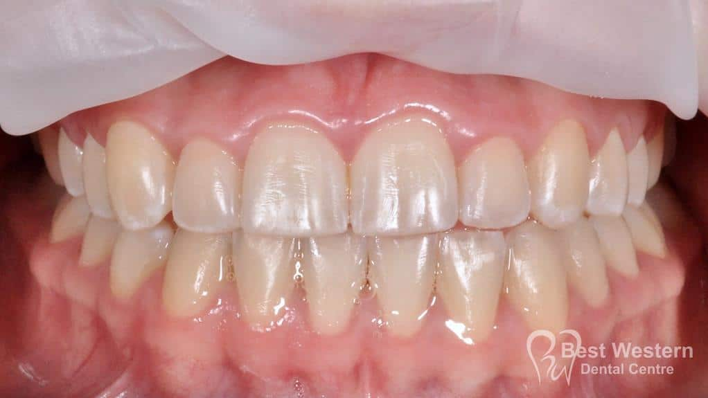 After- Orthodontics-44