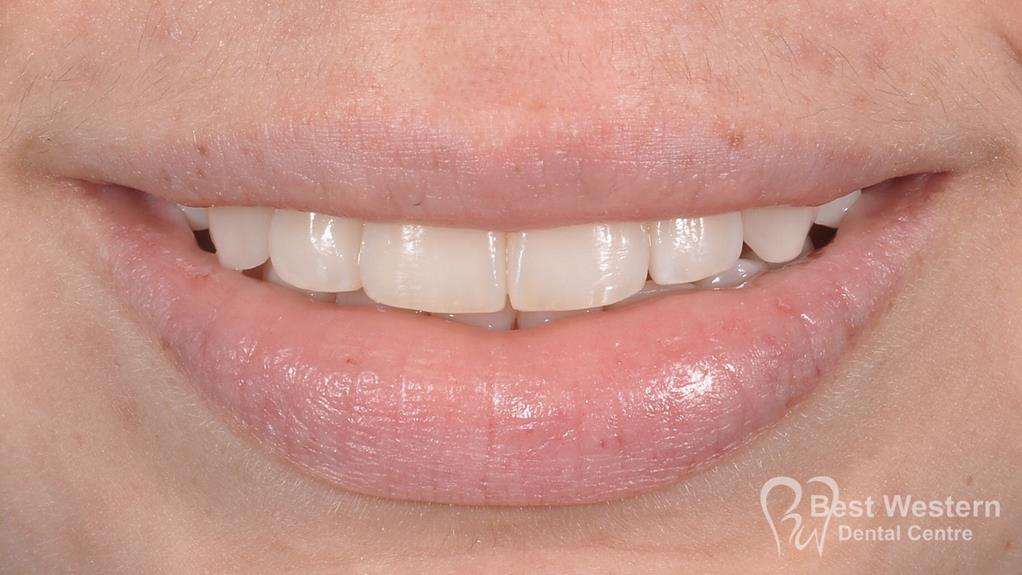 After- Orthodontics-46