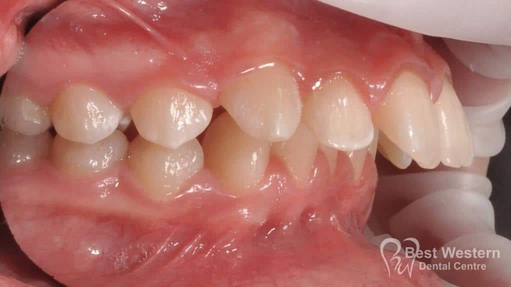 Before- Orthodontics-48
