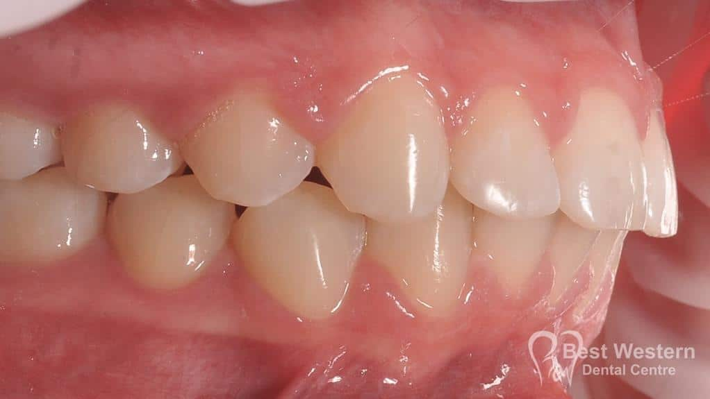 After- Orthodontics-48