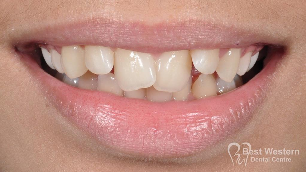 Before- Orthodontics-49