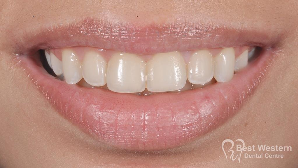 After- Orthodontics-49