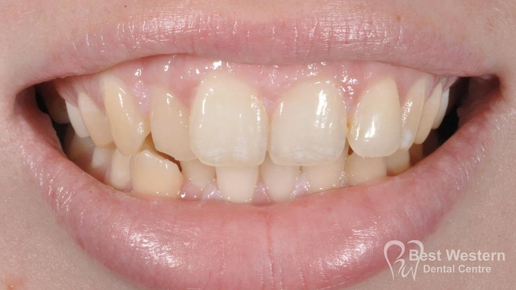Before-Orthodontics -4