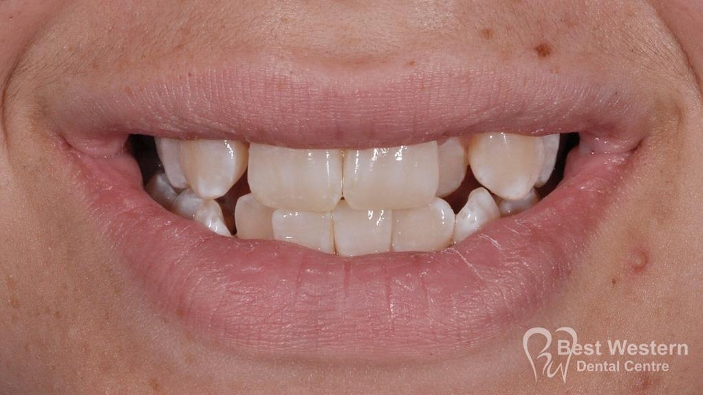 Before- Orthodontics-50