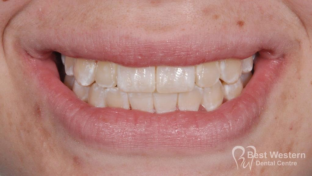 After- Orthodontics-50