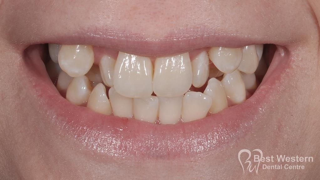 Before- Orthodontics-51