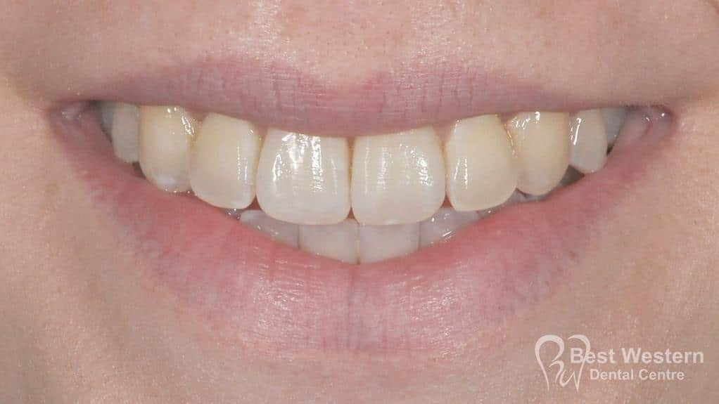 After- Orthodontics-51