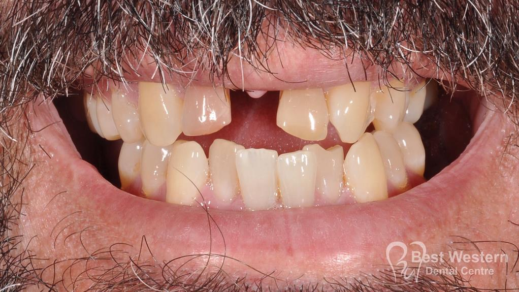 Before- Orthodontics-52