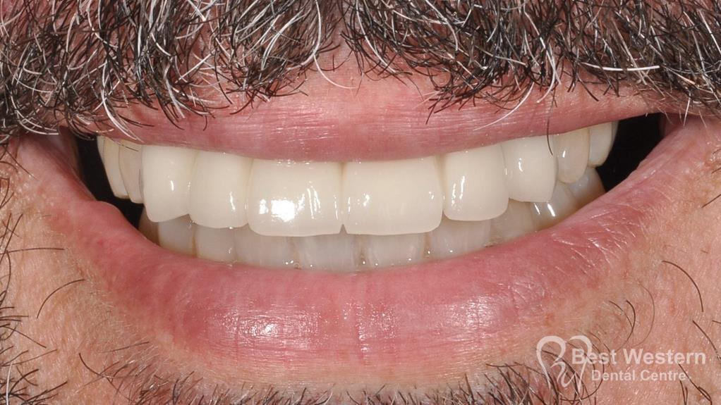 After- Orthodontics-52