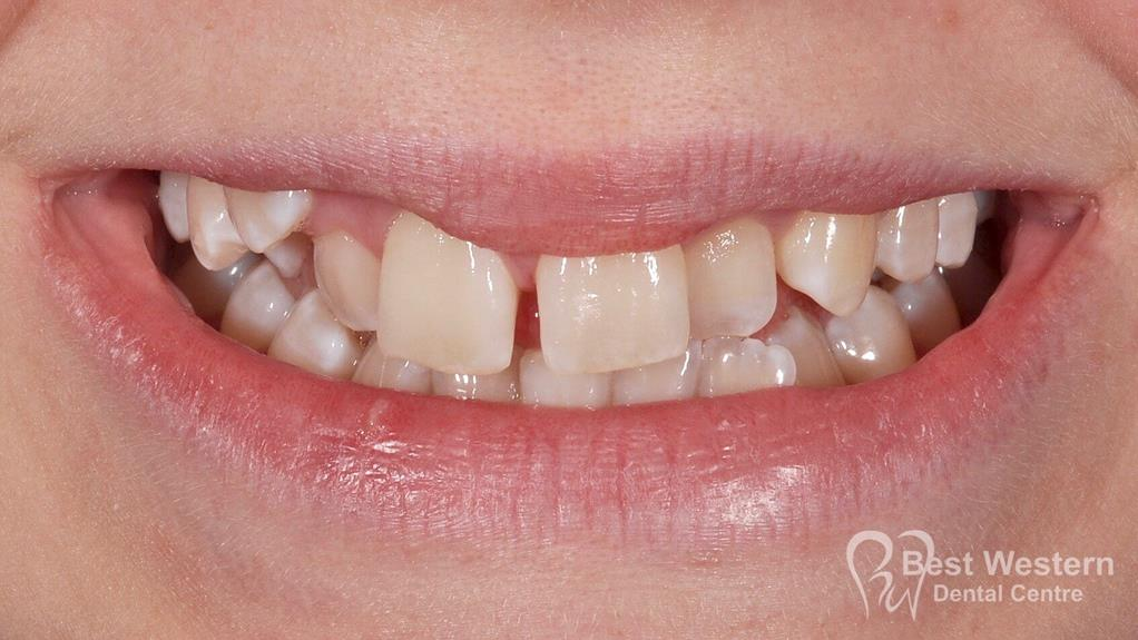 Before- Orthodontics-53