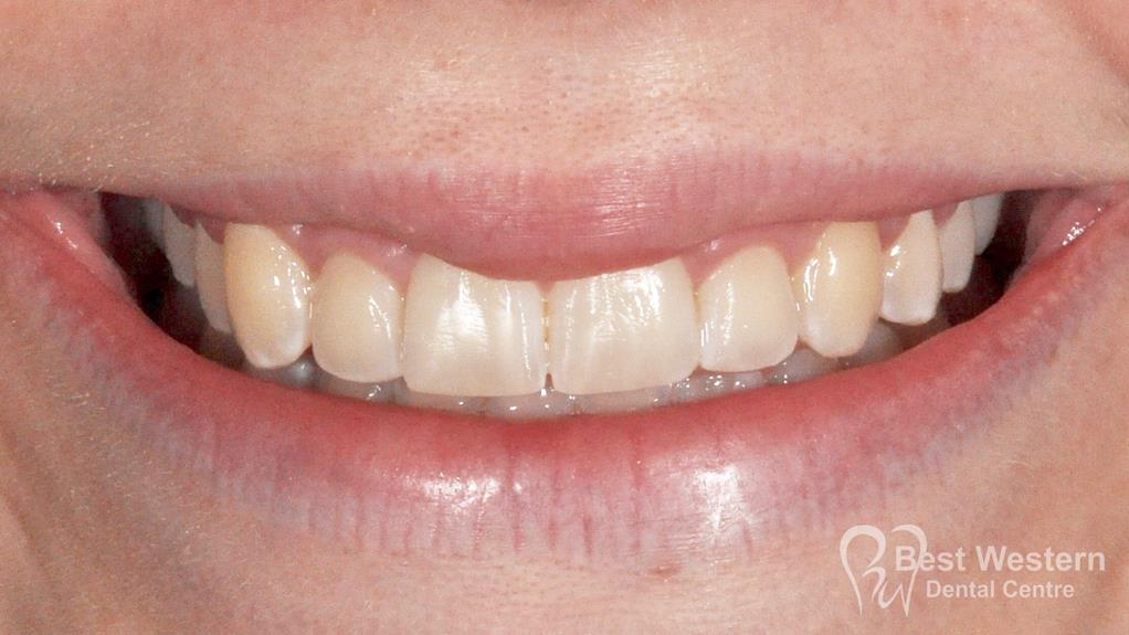 After- Orthodontics-53