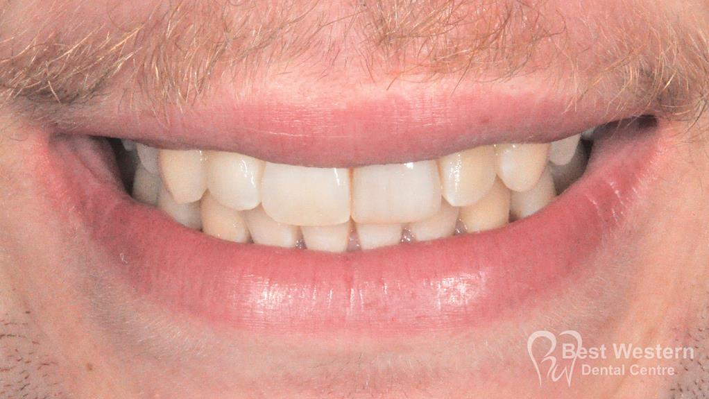 After- Orthodontics-54