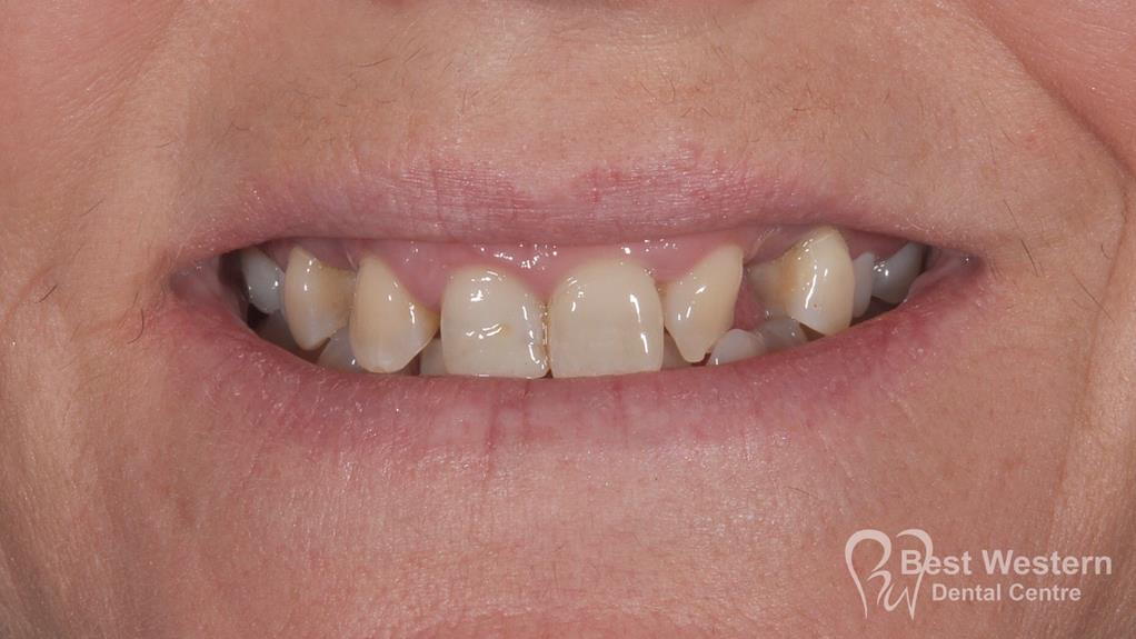 Before- Orthodontics-55