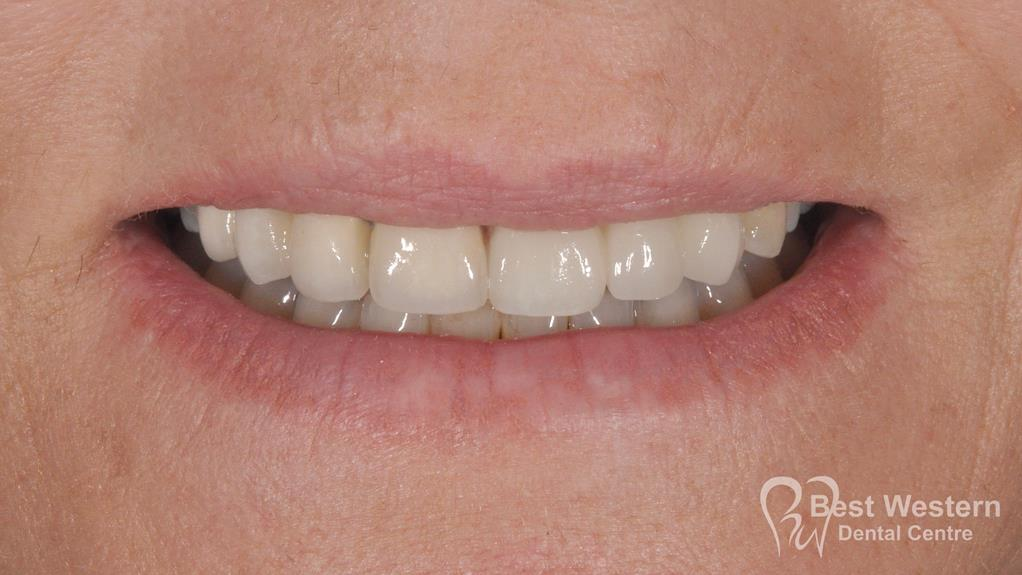 After- Orthodontics-55